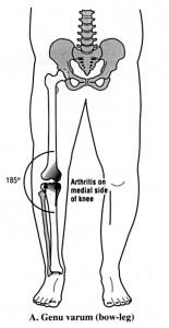 Varum Knee